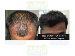 hair transplant month by month pictures hair growth after hair transplant