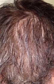my photo diary how i saved my hair honest hair loss help
