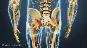 lumbar radiculopathy
