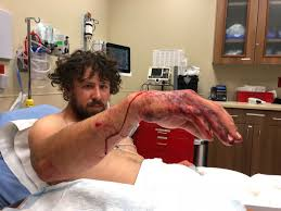 M El K He Billings Man Attacked By Grizzly While Elk Hunting In Paradise