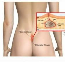 pilonidal cyst location why do doctors call a pilonidal cyst when it is actually a boil quora