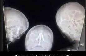 Xray Meme - x ray selfie funny pictures quotes memes funny images funny