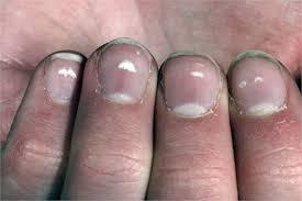 white spots vertical lines splits what your fingernails can