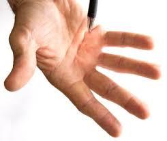 knoten handinnenfläche morbus dupuytren friederike zimmermann praxisklinik am tegernsee