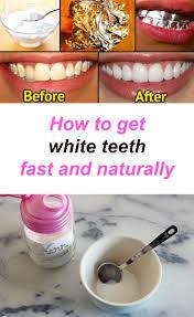 1128 best teeth whitening images on pinterest dental teeth
