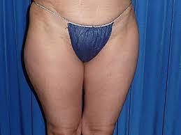 bindegewebsschwäche beine vacustyler weyergans bodyshaping bei beau well dreams