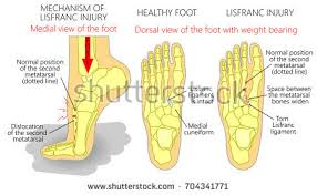 Top Foot Anatomy Vector Illustration Normal Human Foot Valgus Stock Vector