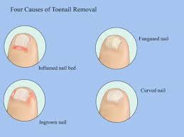 toenail fungus can removing the nail save it sterishoe blog