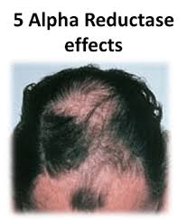 what gets rid of dht in body how to fight dht naturally the greatest news on baldness