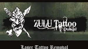 tattoo removal dublin zulu tattoo dublin laser tattoo removal
