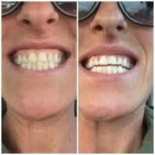 pro light dental whitening system reviews davinci teeth whitening teeth whitening 1720 w mulberry st fort
