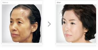 hair style wo comen receding grand plastic surgery anti aging female hair loss