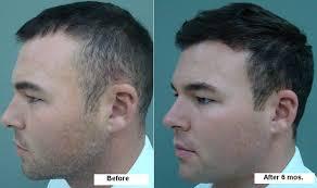 hair plugs for men men s hair transplants appearance