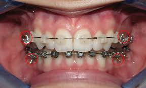 Teeth Bleaching What Can I Eat With Braces Awesome Where Can I