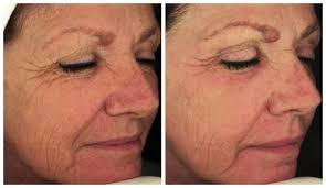 laser for skin pigmentation sunspots and tattoo removal