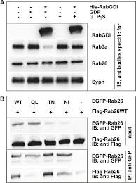 the gtpase rab26 links synaptic vesicles to the autophagy pathway