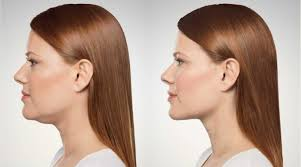 flattering hairstyles for double chins or sagging necks chin treatment kybella springfield mo
