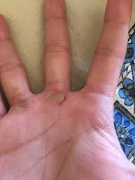 hey guys i had a callus tear on me for the first time looking