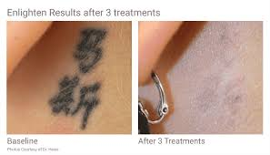 tattoo removal in seattle using pico technology at well medical arts