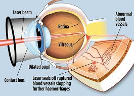 Cure For Night Blindness Cool U0027 Laser To Stop Diabetics Going Blind Doctors Hail New