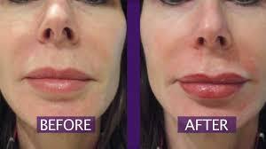 permanent makeup lips permanent lip color youtube