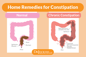 How To Make Yourself Go To The Bathroom When Constipated 16 Ways To Achieve A Healthy