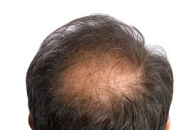 hair cuts for balding crown problem 10 things you should know about male hair loss men s health