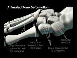 Skeletal Picture Of Foot Skeletal Fracture Of Foot Bones Youtube