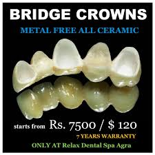 Bridge Dental Cost Estimate by Dental Treatment Cost In Agra Relax Dental Spa Agra Dr