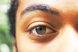 Vitamin Deficiency And Hair Loss Vitamins For An Eye Stye Livestrong Com