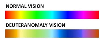 Cause Of Colour Blindness Deuteranomaly Color Blindness