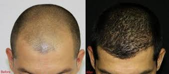 hair transplant in the philppines cost why get stem cell hair transplant in abu dhabi