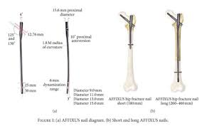 academic onefile document outcomes of geriatric hip fractures