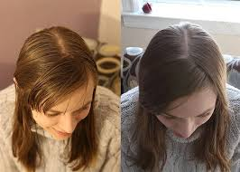 hair coke rinse the no shoo experiment six months later treehugger