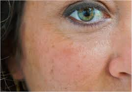 light patches on skin age spots dermagraphic