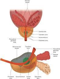 transrectal ultrasound of the prostate radiology key