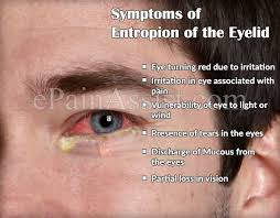 eye pain from light entropion of the eyelid or inverted lower eyelid causes symptoms