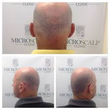 micro scalp clinic 37 photos hair loss centers 176 newbury