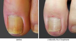 laser treatment for toenail fungus beverly hills los angeles