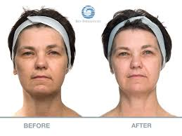 Pumpkin Enzyme Peel Before And After by Microcurrent Longmont Co Arejuvenation Med Spa