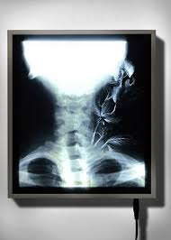 x ray light box for sale 51 best x ray images on pinterest anatomy x rays and anatomy
