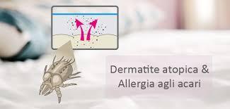 dermite du si e dermatite atopica e allergia agli acari un binomio ricorrente