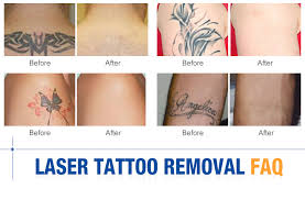 temporary tattoo shine remover q switched nd yag laser tattoo