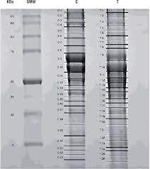 proteomics analysis of tissue samples from patients with squamous