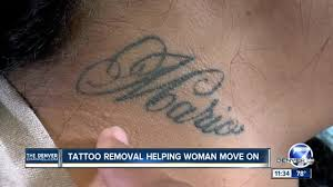 tattoo removal inc tattoo removal helps domestic abuse survivor move on denver7