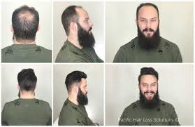 male hair extensions before and after male hair loss before after pacific hair extensions hair