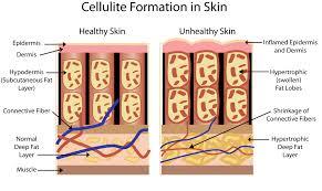 how to get rid of cellulite u2013 noellyanikfitness