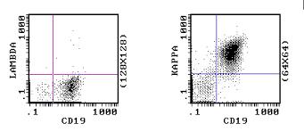 difference between kappa and lambda light chains kappa3 gif