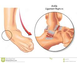Ankle Anatomy Ligaments Ankle Ligament Rupture Royalty Free Stock Photography Image