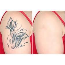laser tattoo removal treatment in mumbai